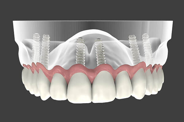 Dental Implant Supported Dentures in Bardonia