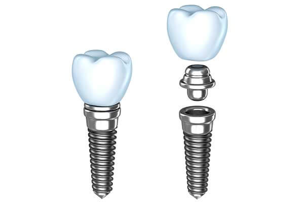 Single Dental Implants in Bardonia