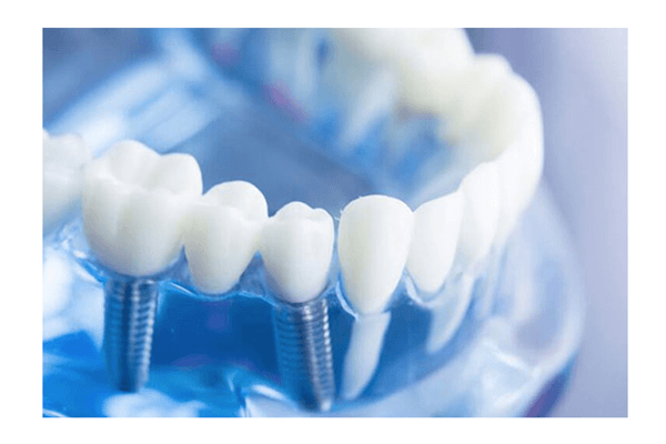 Dental Implants in Bardonia, NY