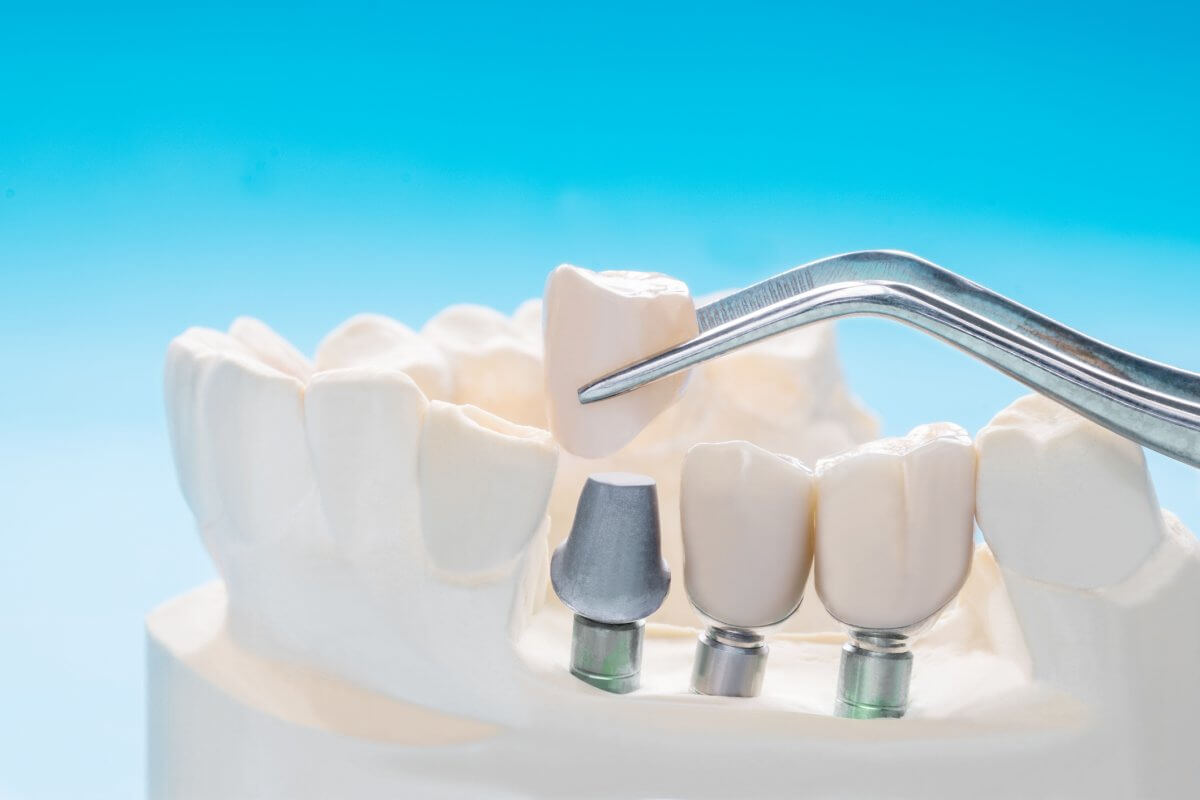 Close-Up of Dental Implant and prosthodontic.